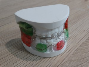 labortho prothese orthodontie 02