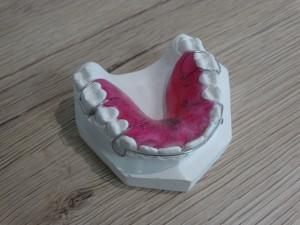 labortho prothese orthodontie 04